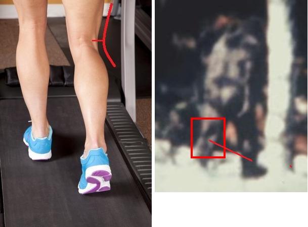 leg-Depositphotos_18535827_calves-treadmill-001-1500.jpg